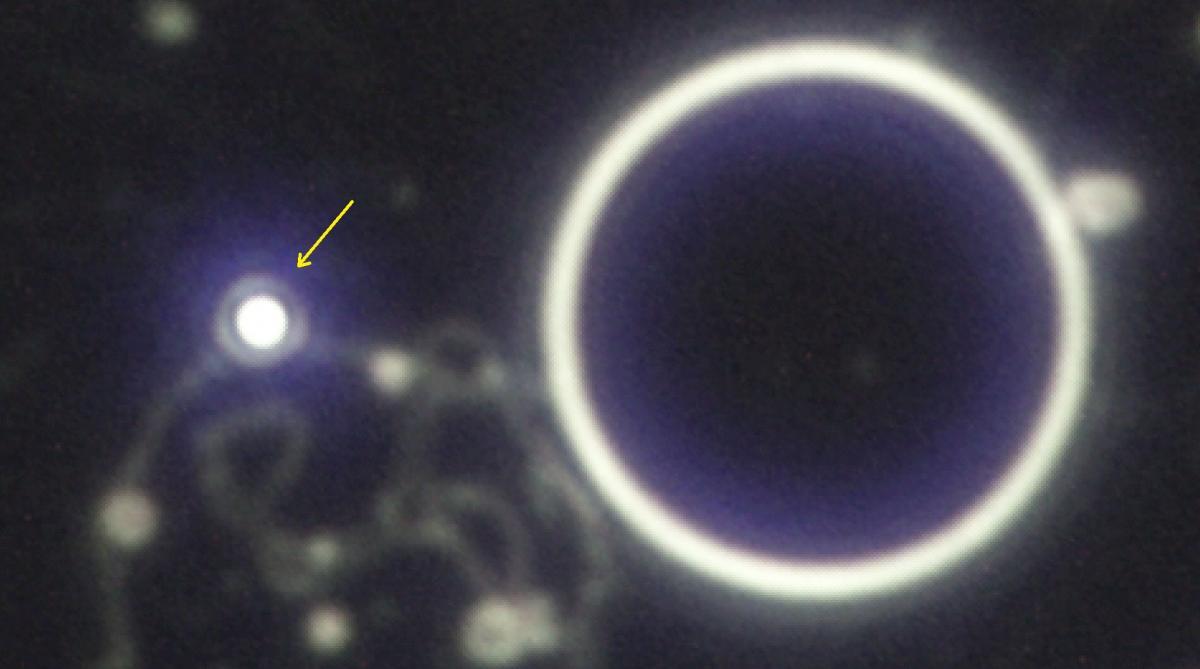 Esporoide y glóbulo rojo bien centrado con microscopio de campo oscuro
