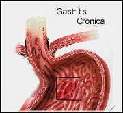 gastritis definicion: