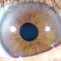 Signos circulares del iris