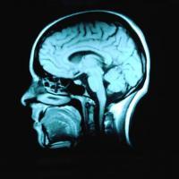 Síntomas de meningitis