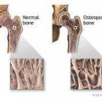 Medicina natural para la osteoporosis