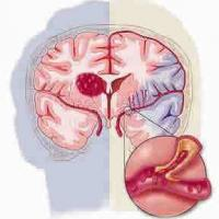 Medicina natural para la apoplejía o isquemia