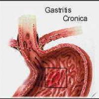 Diferentes causas de la gastritis