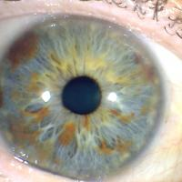 Manchas del iris - DCH