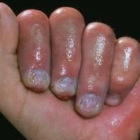 Medicina natural para los sabañones