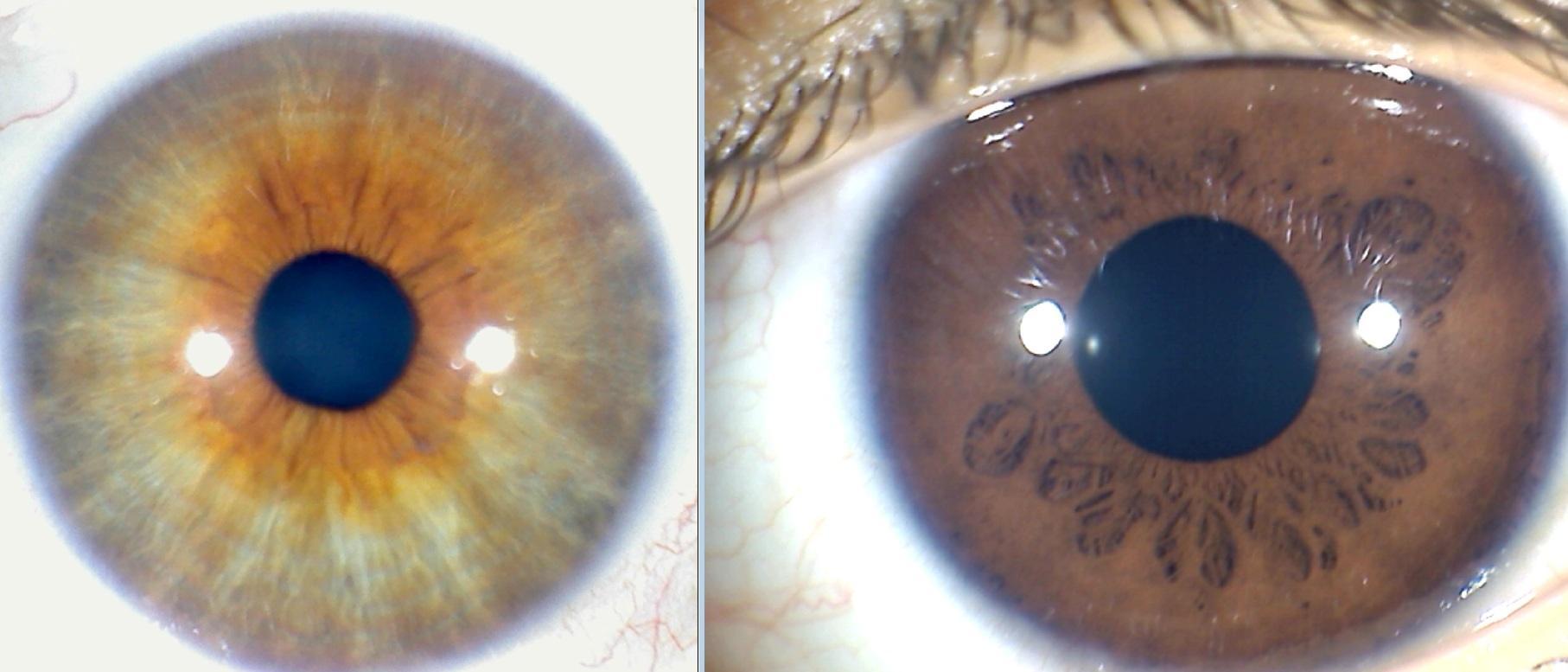 Distinta densidad en los iris - Iridología