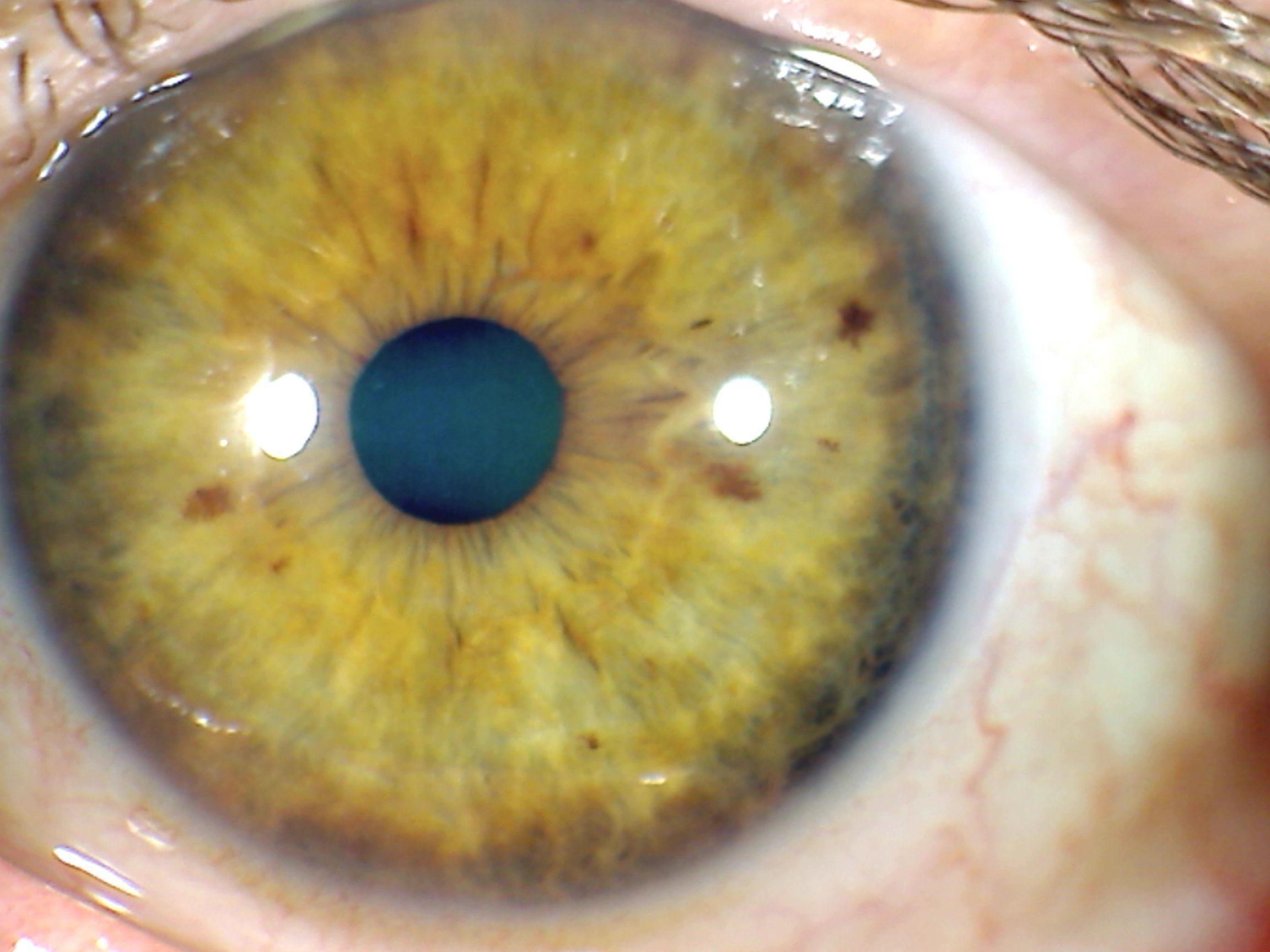 Acidos en el iris - Iridología