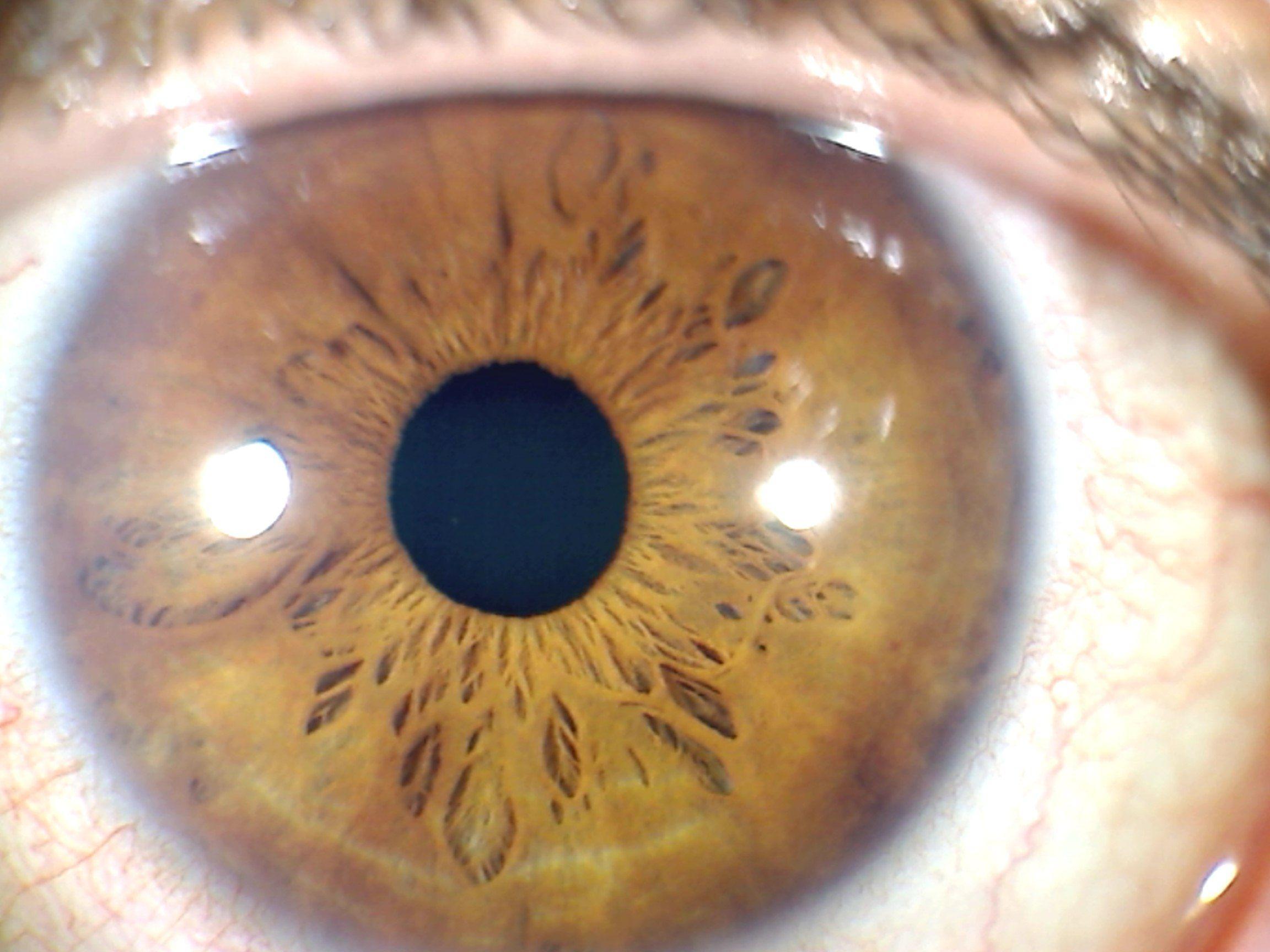 Signos del iris