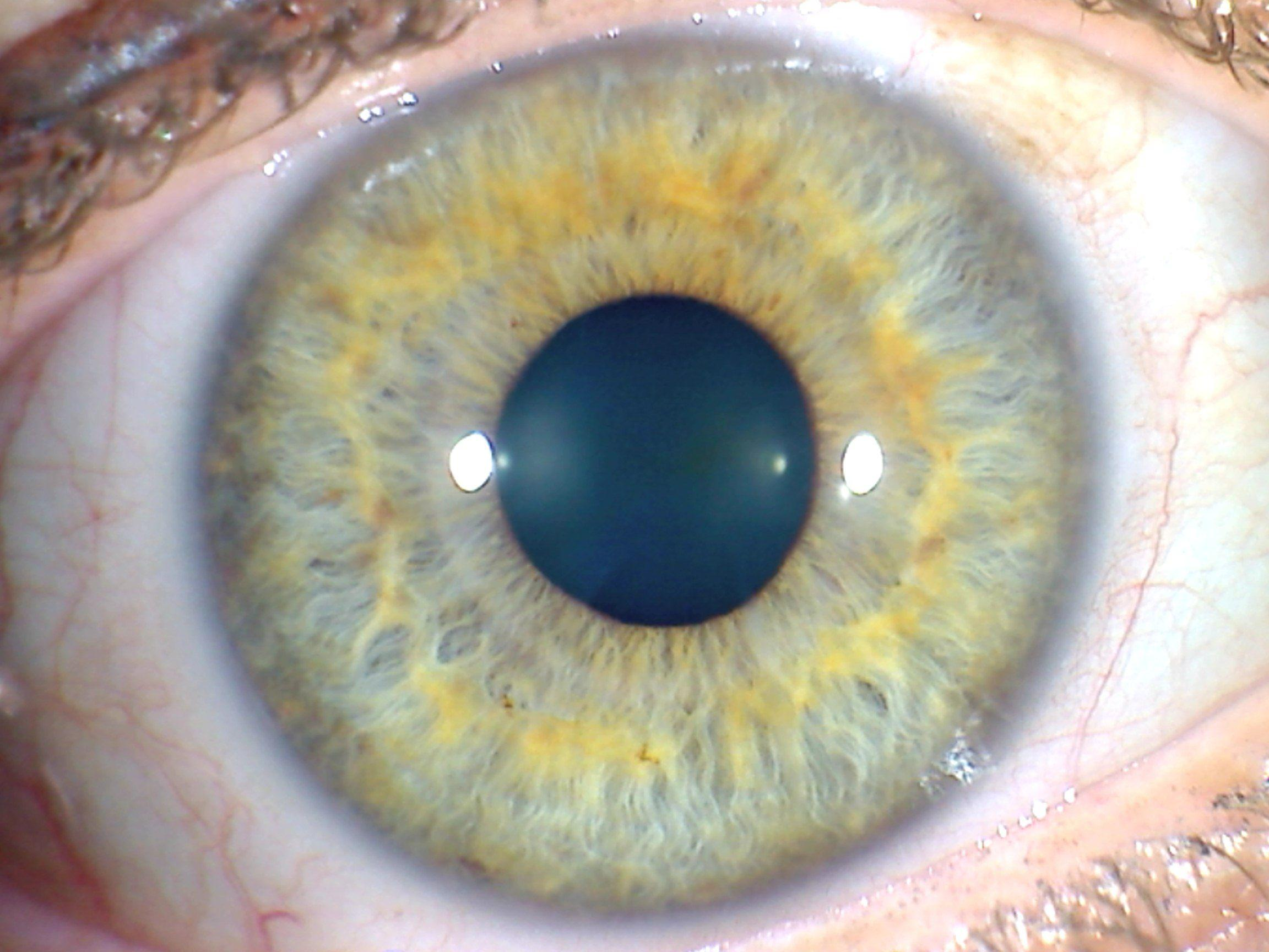 Medicina natural para los ojos