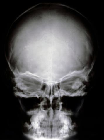Las enfermedades del cerebro