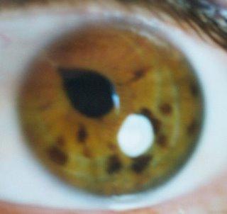 Diagnóstico por la pupila - Iridología