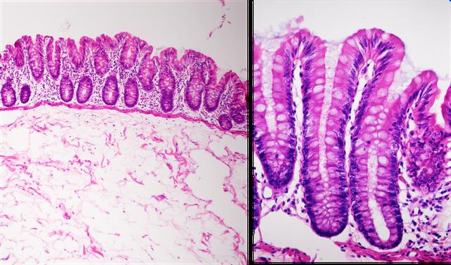 Vellosidades intestinales para la absorción
