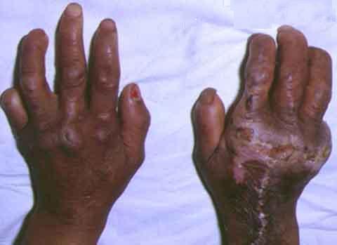 Casos de lepra