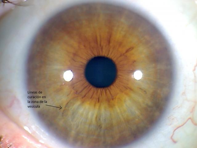 Líneas de curación en el iris
