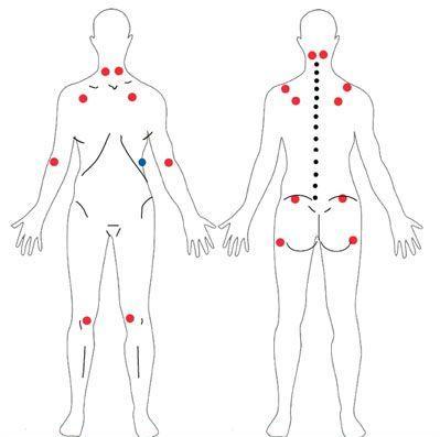 Medicina natural para la fibromialgia