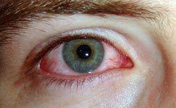 Síntomas de conjuntivitis