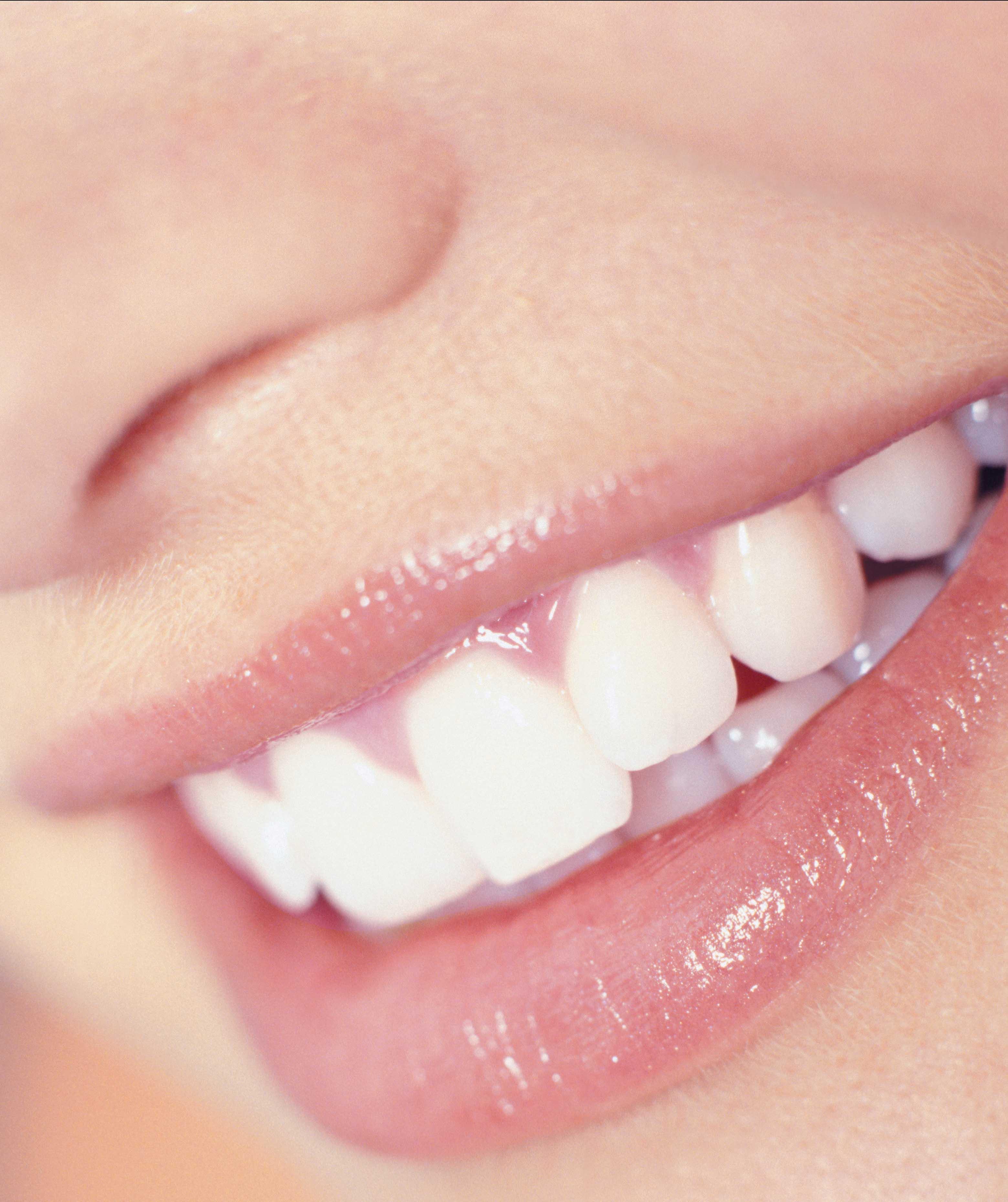 Remedios para tener los dientes blancos