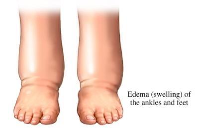 Medicina natural para los edemas