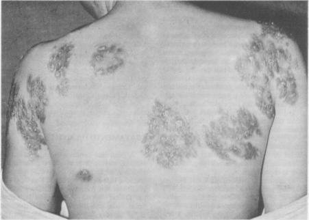 Remedios de homeopatía para la sífilis