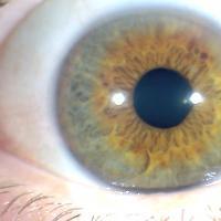 Pupila descentrada - Iridología