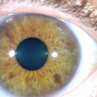 Manchas del Iris