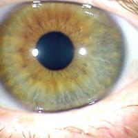 Signos reflejos de los iris