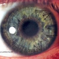 Fibras del iris en estado agudo y subagudo