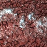 Fibrina en gota de sangre coagulada