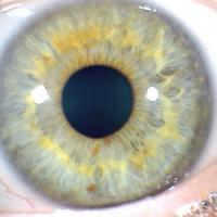 Iris izquierdo