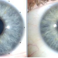 Estudio del iris en Iridiología