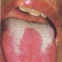 Saburra de la lengua parcial