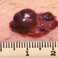 Lunares asociados al cáncer