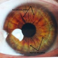 Rayos solares en iridología
