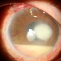 Síntomas de la úlcera corneal