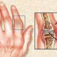 Remedios para reumatismo