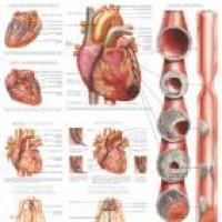 Cómo evitar los riesgos de ataques al corazón o enfermedades coronarias