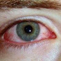 Medicina natural para la conjuntivitis
