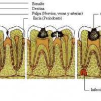 Medicina natural para las caries y encías