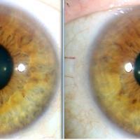 Cada iris nos revela o la parte derecha o izquierda del cuerpo