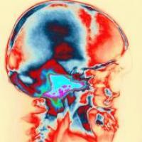 Síntomas y tipos de neuralgias