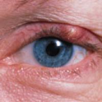 Plantas medicinales para los ojos